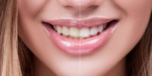 Comparing Teeth Whitening Strips